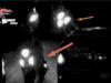 in-fuga-nella-notte-con-scooter-rubato
